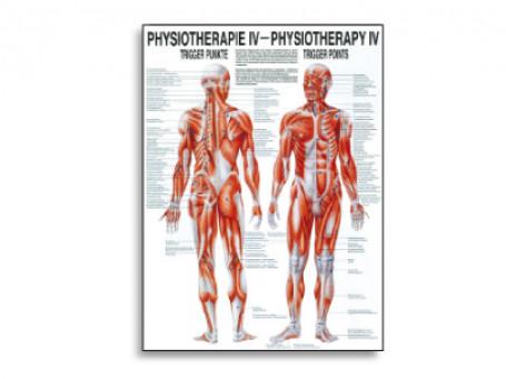 Triggerpoints fysiotherapie-poster
