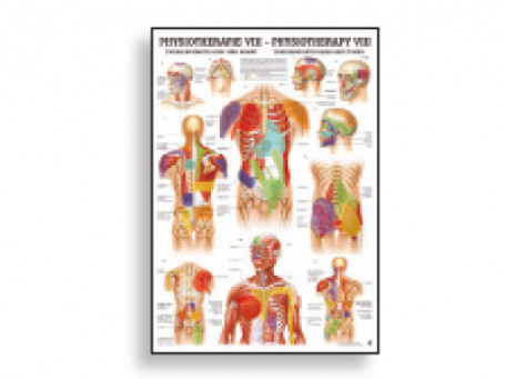 Triggerpoints Hoofd & Romp fysiotherapie-poster