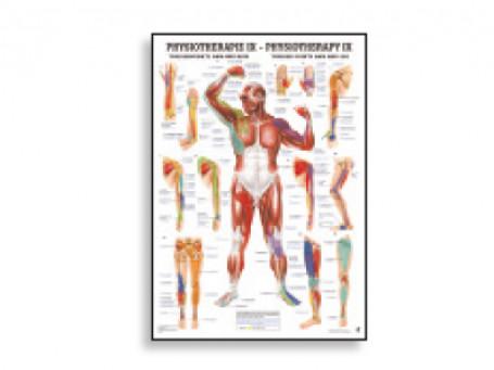 Triggerpoints Armen & Benen fysiotherapie-poster